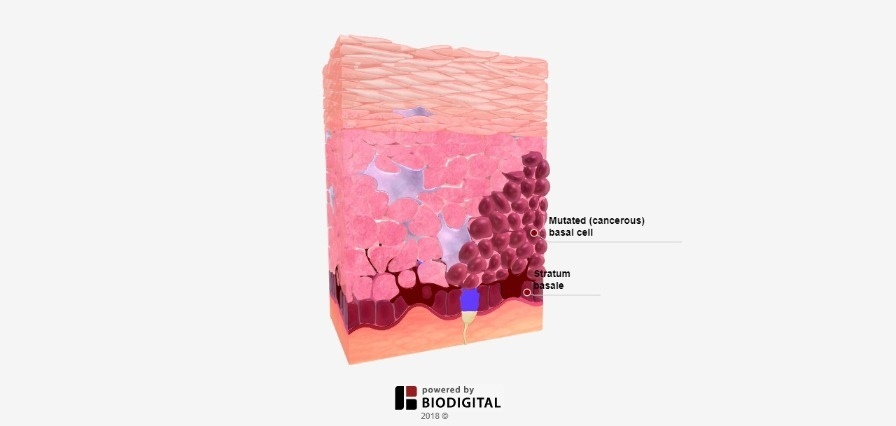 3D Tour of Basal Cell Carcinoma in Tissue
